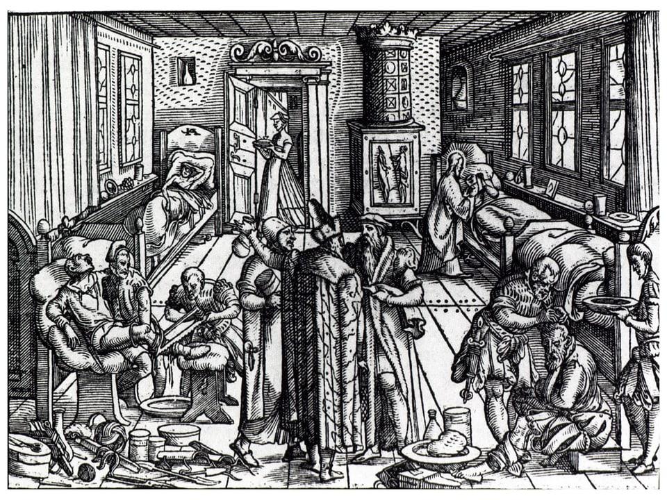 Holzschnitt einer Amputation im 16. Jahrhundert