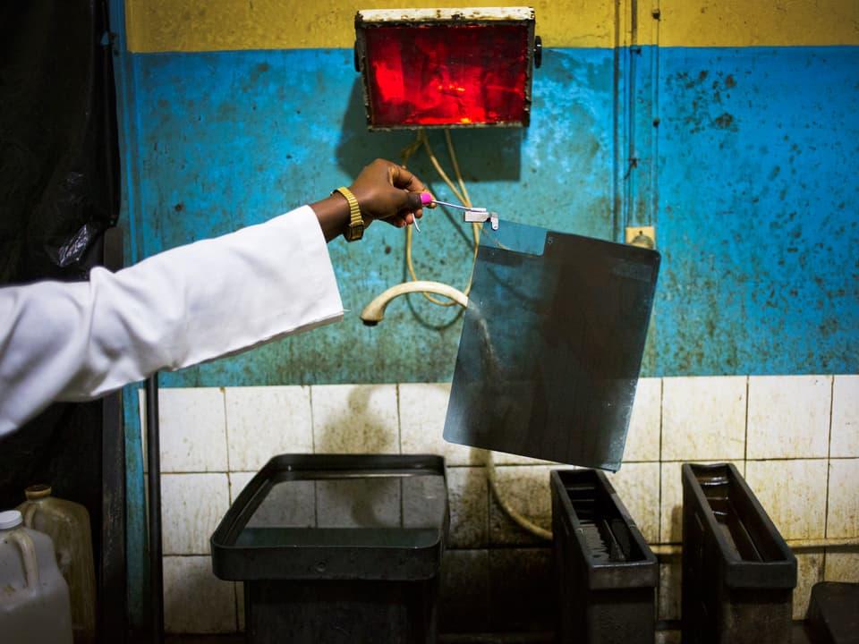 Eine Frauenhand hält mit einer Pinzette einen Röntgenfilm über Gefässen mit chemischen Flüssigkeiten.