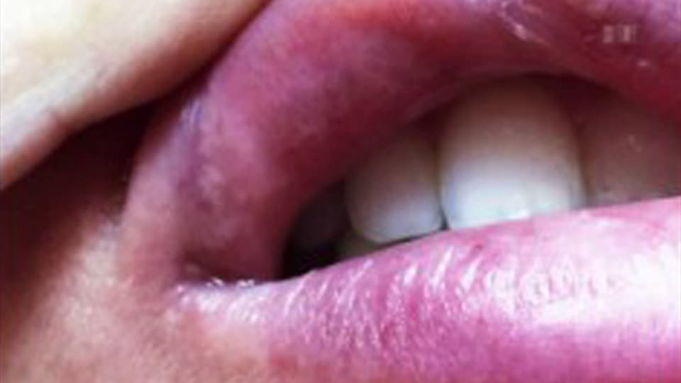 Irreversible Schäden: Knötchen innen an der Lippe.