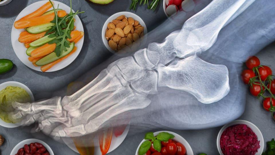 Veganer aufgepasst: Auf die Knochendichte achten!