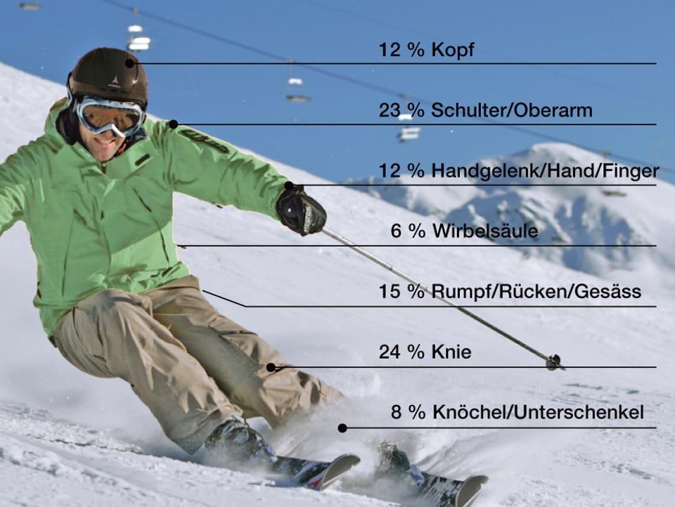 Infografik Sportverletzungen beim Skifahren.