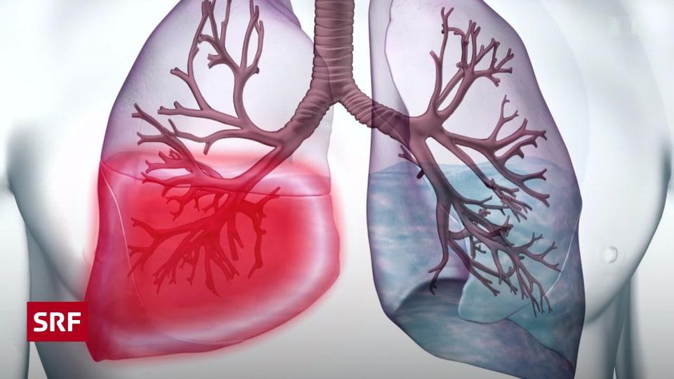 was hilft bei lungenentzündung
