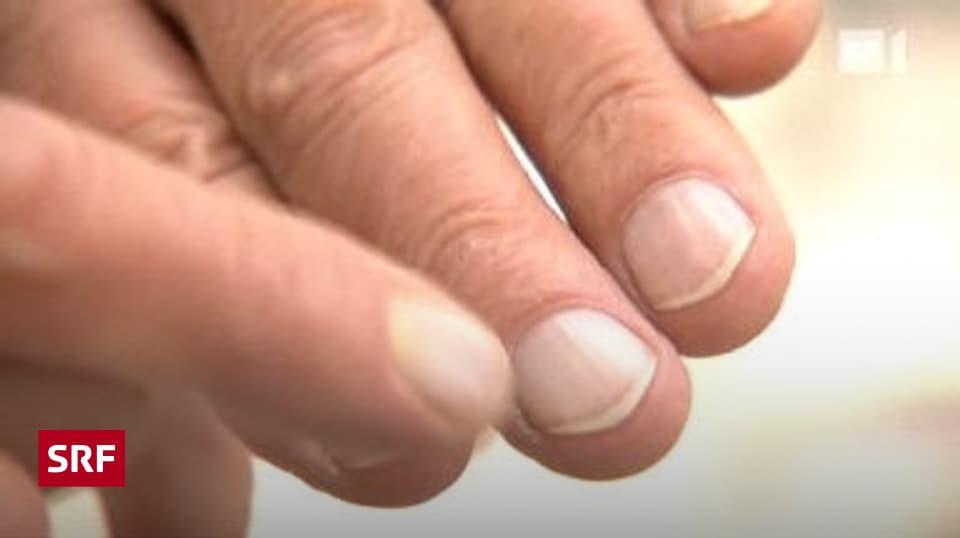 Nicht fingernagel nach wächst Nagel verletzt