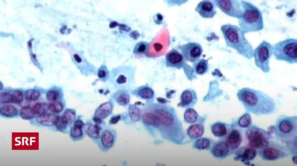 Ansteckung toilette chlamydien Ansteckung mit