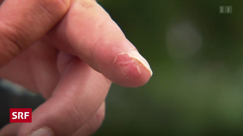 Abgetrennt heilung fingerkuppe Habe einen