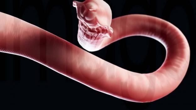 Würmer erzeugen auch eine morbide Faszination, wenn man sich näher mit ihnen beschäftigt.