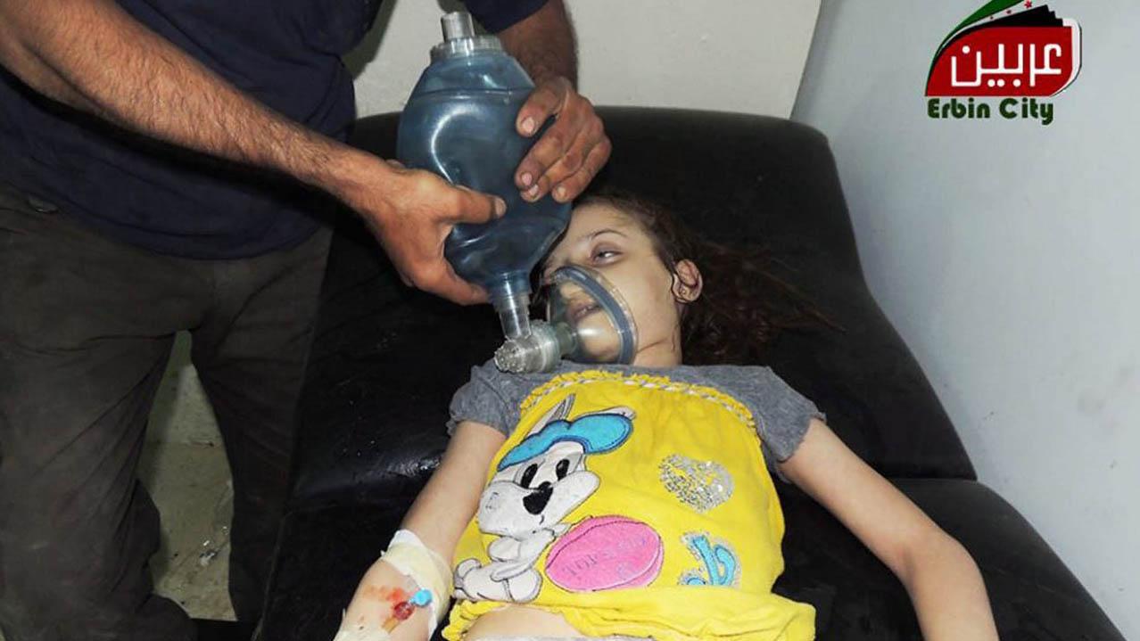 Kind wird nach einem mutmasslichen Giftgasangriff in Syrien behandelt.