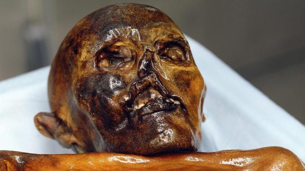 «Ötzi» kommt nicht richtig zur Ruhe. Noch heute ist er ein begehrtes Forschungsobjekt.