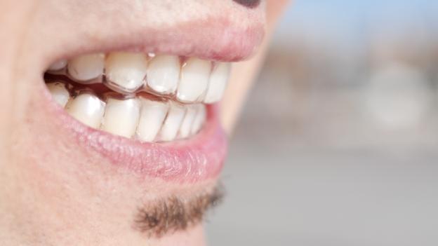 Eine Zahnschiene schützt die Zähne vor Abrieb und leitet Kräfte gleichmässig ab.