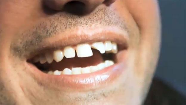 Zahnschaden nach Kirschkonfi essen, Versicherung muss zahlen