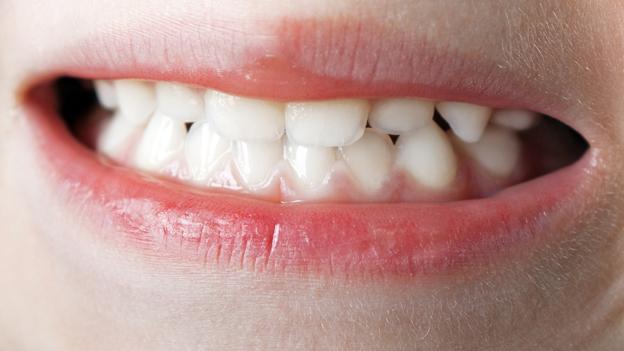 Gegen das Zähneknirschen in der Nacht
