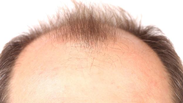 Audio ««Haarwuchs»-Kosmetika: 3000 Franken für nichts ausgegeben» abspielen.