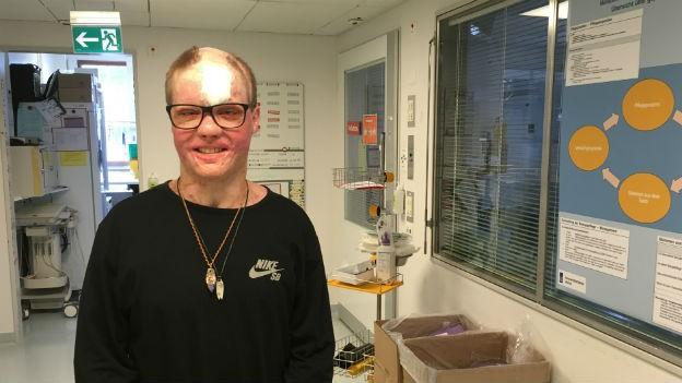 Philipp Bosshard: 88 Prozent der Haut verbrannt