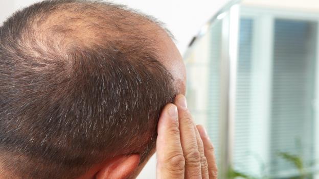 Wieviel Haarausfall ist normal?