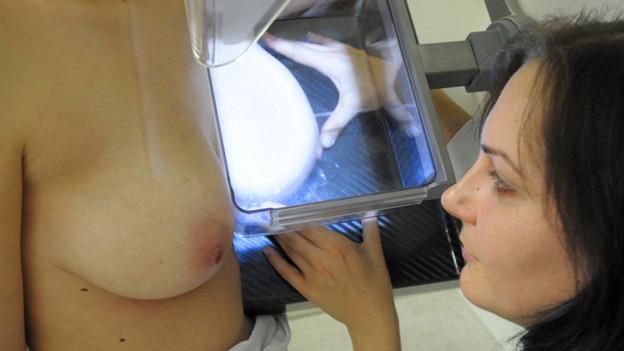 Audio «Was taugt die Brustkrebs-Früherkennung?» abspielen