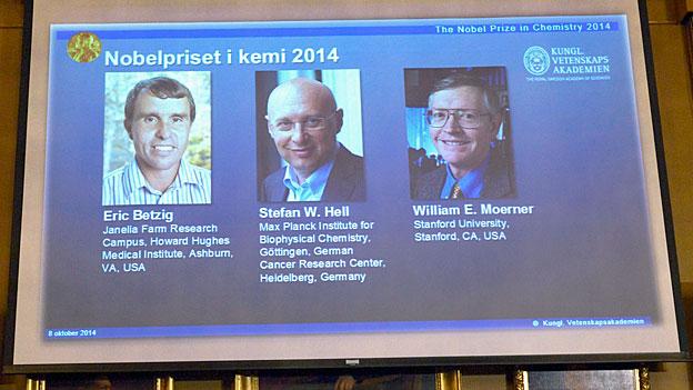 Chemie-Nobelpreis für «Superresolution-Fluoreszenzmikroskopie»