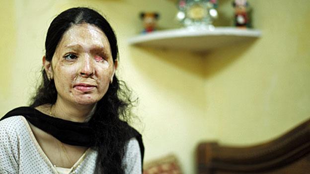 Reshma Qureshi – Opfer eines Säureangriffs geht in die Offensive