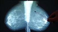 Audio ««Je früher Brustkrebs entdeckt wird, desto besser»» abspielen