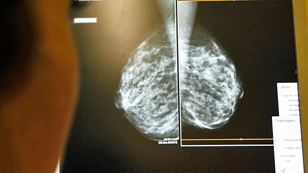Umstrittene Brustkrebsvorsorge