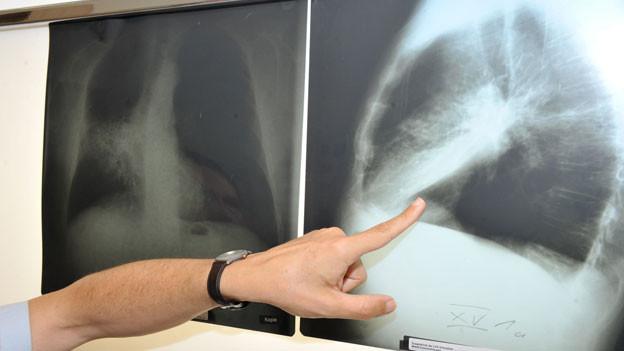 Audio «Diagnose Krebs - und die Kasse will nicht zahlen» abspielen.