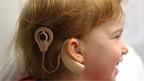 Ein Cochleaimplantat