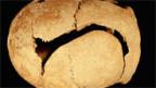 Schwere Hiebverletzung am Kopf eines Mannes aus dem frühen Mittelalter, gefunden bei Biel.