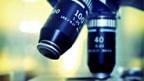 Forscher fanden Neues über die Auslöser von Prostatakrebs.