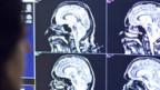 Durch die MRT werden die neuronalen Vorgänge im Gehirn sichtbar gemacht.