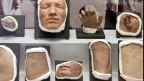 Gesichter, Füsse, Hände mit Krankheiten