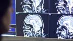 Neurowissenschaftler überwachen die Hirnaktivitaet eines Probanden.