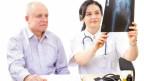 Ärztin und Patient schauen Röntgenbild an.
