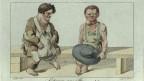 Kretinismus-Erkrankte. Kupferstich um 1815