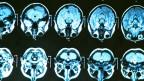 Das Gehirn stösst an seine Grenzen, wenn es um langfristige Prozesse geht.