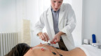 Auch Akupunktur ist Teil der Komplementärmedizin.