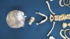 In vielen naturhistorischen oder anthropologischen Museen Europas liegen zahlreiche menschliche Ueberreste.