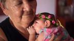 Ein vier Monate altes Kind mit Mikrozephalie im brasilianischen Pernambuco, Februar 2016.