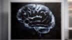 Das menschliche Hirn mithilfe von Supercomputern verstehen: Geht das?
