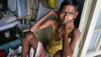 Tuberkulose-Patient Moniram Das im TB-Krankenhaus in Gauhati, Indien. Die Krankheit ist heilbar und sogar verhinderbar. Symbolbild.