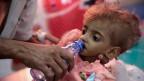 Ein Vater gibt seinem unterernährtem Kind in einem Spital in Jemen Wasser zu trinken.