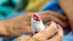 Für Neugeborene, die leichter sind als ein Kilo, erhält ein Spital rund 50'000 Franken mehr.