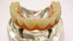 Modell eines Zahnimplantats von Nobel Biocare.