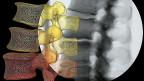 Seit dem letzten Jahr läuft ein Pilotprogramm. Nun gilt es ernst: Als erstes werden Kniegelenksspiegelungen angeschaut, Eingriffe an der Wirbelsäule und die Verabreichung von Eisen an Patientinnen, die nicht an Blutarmut leiden. Bild: Ein Mustererkennungsprogramm wandelt das Röntgenbild einer Wirbelsäule in ein 3D-Bewegungsmodell um.