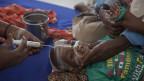 Somalia: Ein von Hunger betroffenes Kind wird in einem Spital über eine Nasensonde ernährt.