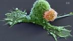 Eine menschliche Immunzelle (orange) greift eine grosse Krebszelle an. Bild: SRF.