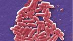 Das Antibiotika-resistente Darmbakterium Escherichia.