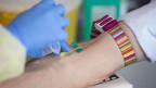 Symbolbild. Einem Patienten wird zu Testzwecken eine Blutprobe entnommen.