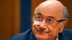 Symbolischer kann ein Bild kaum sein: Sepp Blatter, der einst mächtigste Fussballmanager der Welt mit einem Pflaster im Gesicht. Alle Fifa-Mitarbeitenden täten ihm leid, der Fussball sowieso - und letztlich tue er sich selber auch leid, sagte Sepp Blatter an der Medienkonferenz.