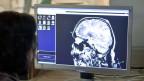 Neurowissenschaftler der Universität Zürich überwachen die Hirnaktivität eines Probanden. Symbolbild.