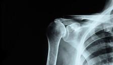 Audio «Frozen Shoulder – wenn die Schulter sich versteift» abspielen