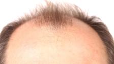 Audio ««Haarwuchs»-Kosmetika: 3000 Franken für nichts ausgegeben» abspielen